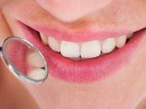 La salud de las encías en la mujer. Parte I