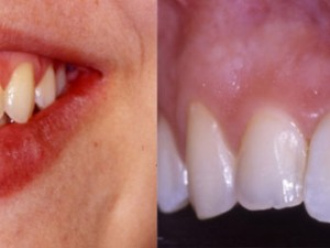 Implante inmediato unitario (para reponer un solo diente)