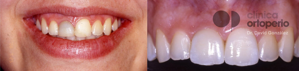 Implante inmediato unitario (para reponer un solo diente) 1