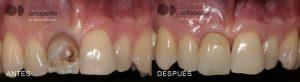 diente-oscuro-negro-1024x281