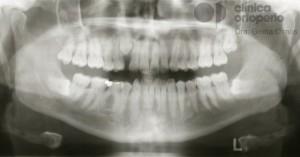 ortodoncia-dientes-impactados