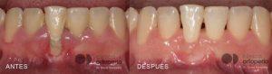 periodontitis-1024x281