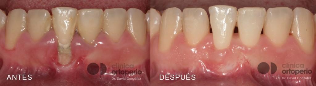 Tratamiento de la Periodontitis: Microcirugía periodontal 1