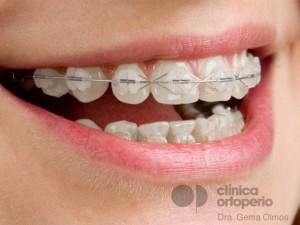 Aparatos de ortodoncia en adolescentes y adultos: elige la mejor opción para tus necesidades