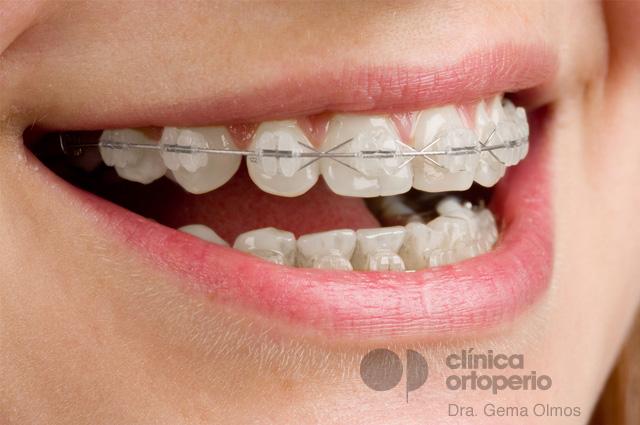 Aparatos de ortodoncia en adolescentes y adultos: elige la mejor opción para tus necesidades 2