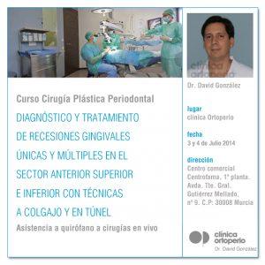 diagnostico-y-tratamiento-de-recesiones-gingivales-copia