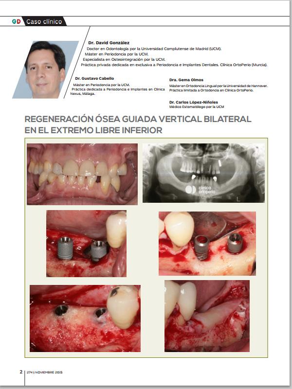 Nueva Publicación del Dr. González y cols. REGENERACIÓN ÓSEA GUIADA VERTICAL BILATERAL EN EL EXTREMO LIBRE INFERIOR 1