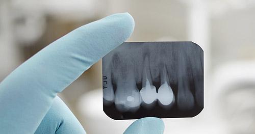 Inicio Clinica Dental Ortoperio en Murcia 15