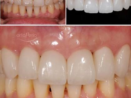 Carillas de porcelana tras curación de periodontitis agresiva