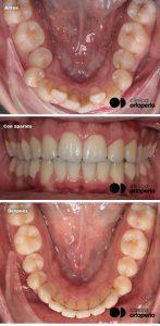 ortodoncia-lingual-caso1