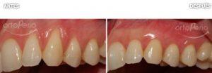 periodoncia-3
