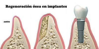 Me han dicho que no tengo hueso para colocarme implantes y que me harán un puente... 1