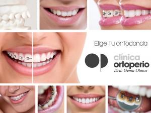 Tipo de ortodoncia ¿cuál es la mejor?