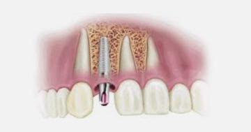 Implantes ¿son todos iguales? 1