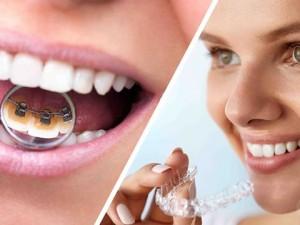 Ortodoncia en Murcia ¿Cuál es la más demandada?