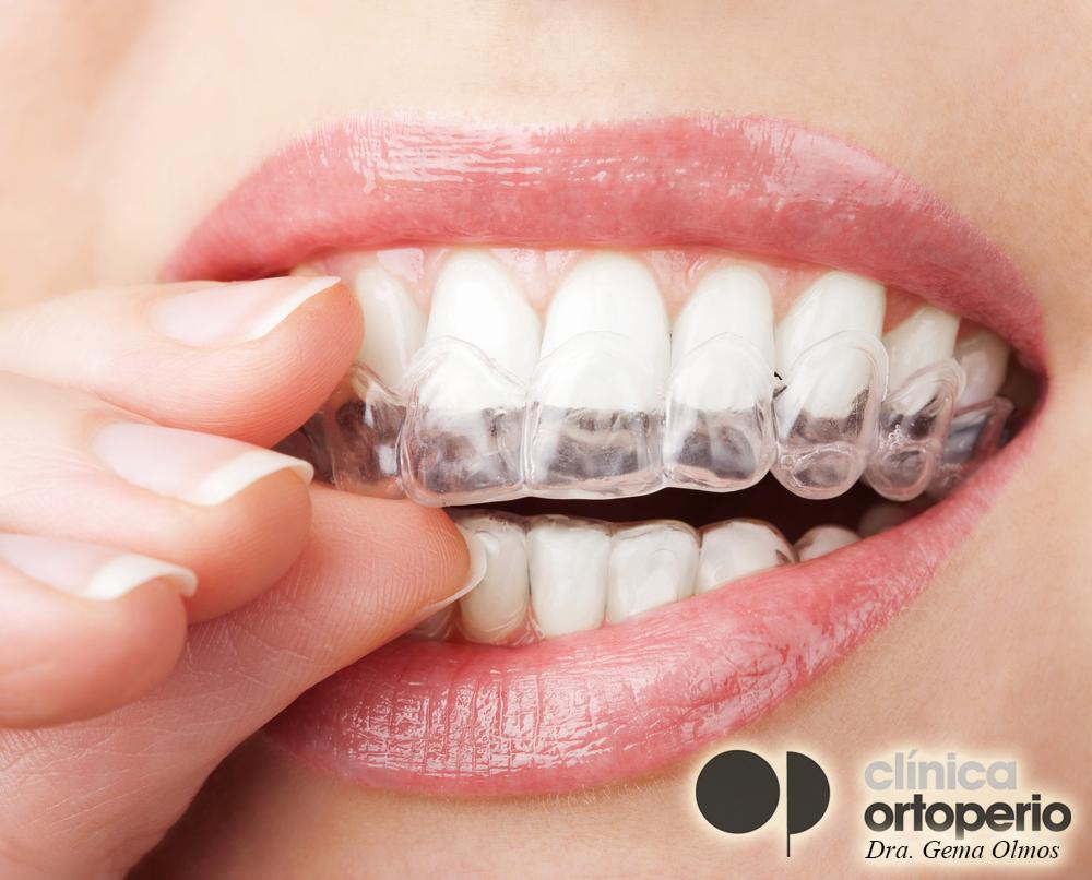 ortodoncia invisible, invisalign