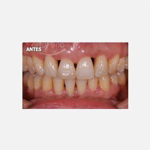 1 Carillas de porcelana tras curación de periodontitis agresiva