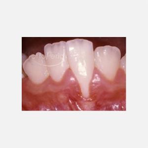 1 Recesión antes de tratamiento ortodoncia