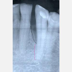 1  Regeneración de hueso perdido por periodontitis