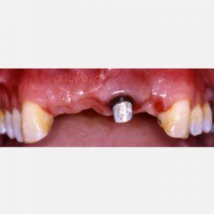 1. Regeneración de hueso y encía. Pîlares de Zirconio