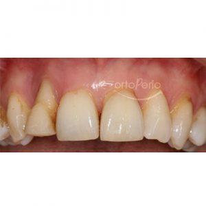 1.  antes. injerto de hueso + implante