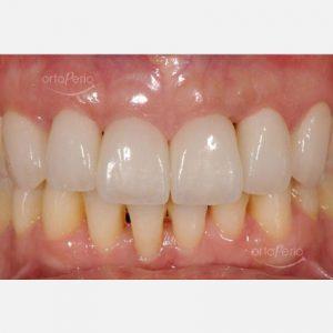 2 Carillas de porcelana tras curación de periodontitis agresiva