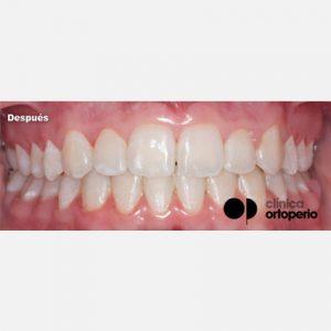 2 Ortodoncia Estética