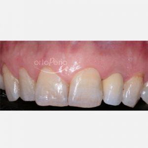 2. Regeneración ósea de implantes en pacientes con periodontitis avanzada