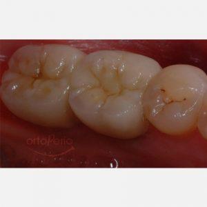 2.Implantología estética en molares