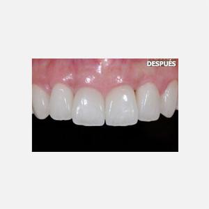 3 Carillas de porcelana tras curación de periodontitis agresiva