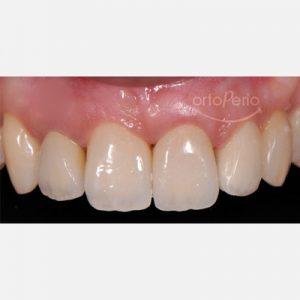 3. Implantología estética. sustitución diente perdido