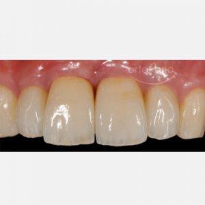 3. Regeneración de hueso y encía. Pîlares de Zirconio