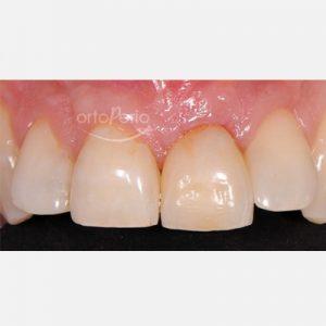 3. regeneración de hueso + implante. diente pérdido por fractura