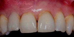 4. despues. injerto de hueso + implante