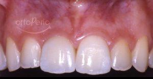despues. sustitución diente necrótico