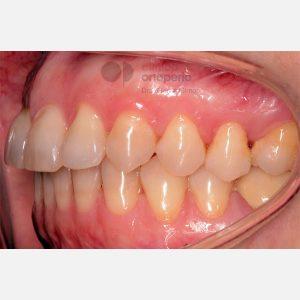 10-Ortodoncia-e-Implantes.-Clase-II2.-Sobremordida-profunda