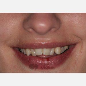 11-Extracción-2-premolares.-Tratamiento-sólo-de-la-arcada-superior