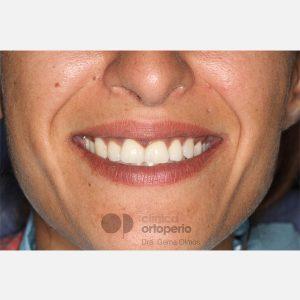 12-Ortodoncia-Lingual.-Caninos-Incluidos.-Ortodoncia-e-Implantes