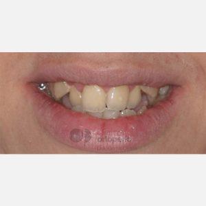13-Ortodoncia-Lingual.-Clase-III,-Mordida-Abierta,-Apiñamiento-severo,-Extracciones