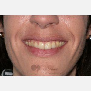 14-Ortodoncia-Lingual.-Clase-III,-Mordida-Abierta,-Apiñamiento-severo,-Extracciones