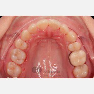 4-Extracción-2-premolares.-Tratamiento-sólo-de-la-arcada-superior