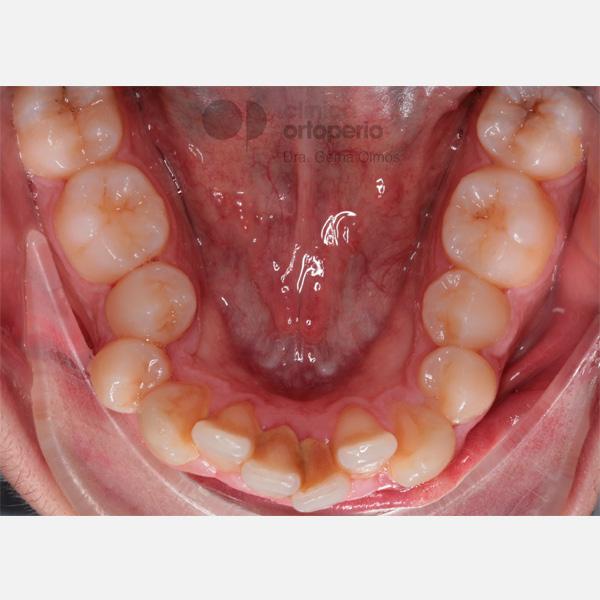 Apiñamiento dental severo. Tratamiento de ortodoncia sin extracciones. 1