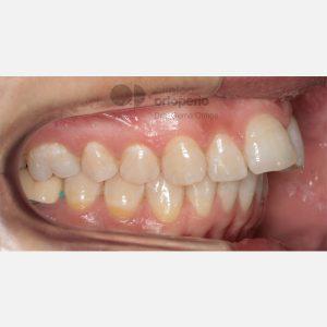 5-Extracción-2-premolares.-Tratamiento-sólo-de-la-arcada-superior
