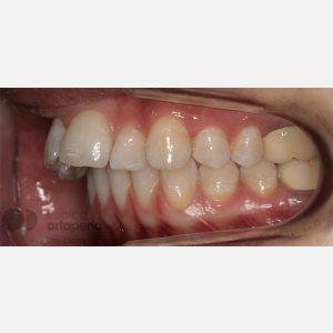 7-Extracción-2-premolares.-Tratamiento-sólo-de-la-arcada-superior