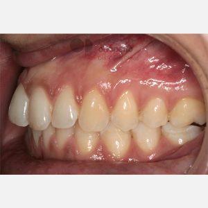 7-Ortodoncia-Lingual.-Apiñamiento
