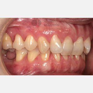 7-Ortodoncia-e-Implantes.-Clase-II2.-Sobremordida-profunda