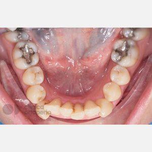 Caso-1.-Ortodoncia-lingual.-Canino-Incluido.antes