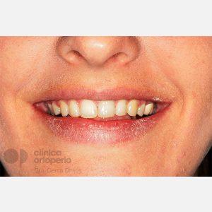 Caso-3.-Extracción-2-premolares.-Tratamiento-solo-de-la-arcada-superior-despues