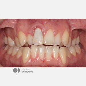 Caso-Multidisciplinar_Implantes-Estéticos-1
