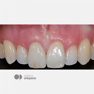 Caso-Multidisciplinar_Implantes-Estéticos-11